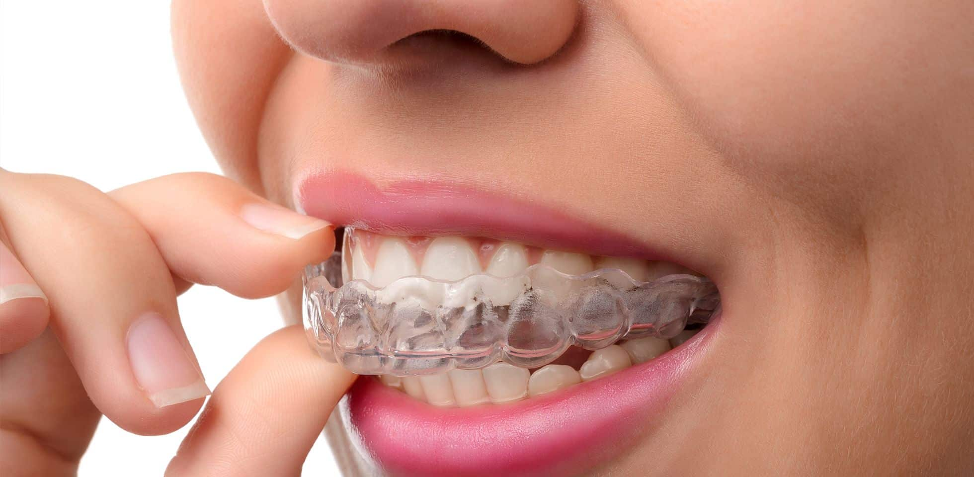 invisalign-rootcanal-treatment