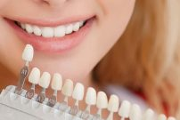 Have you chipped, missing, discoloured, or poorly formed teeth? If you have all of these, do you want to cover your face to mask your smile? Dental veneers are small, personalised enclosures added to the front of your teeth to fix your oral imperfections and produce a stunning smile, says veneers cost liverpool expert.