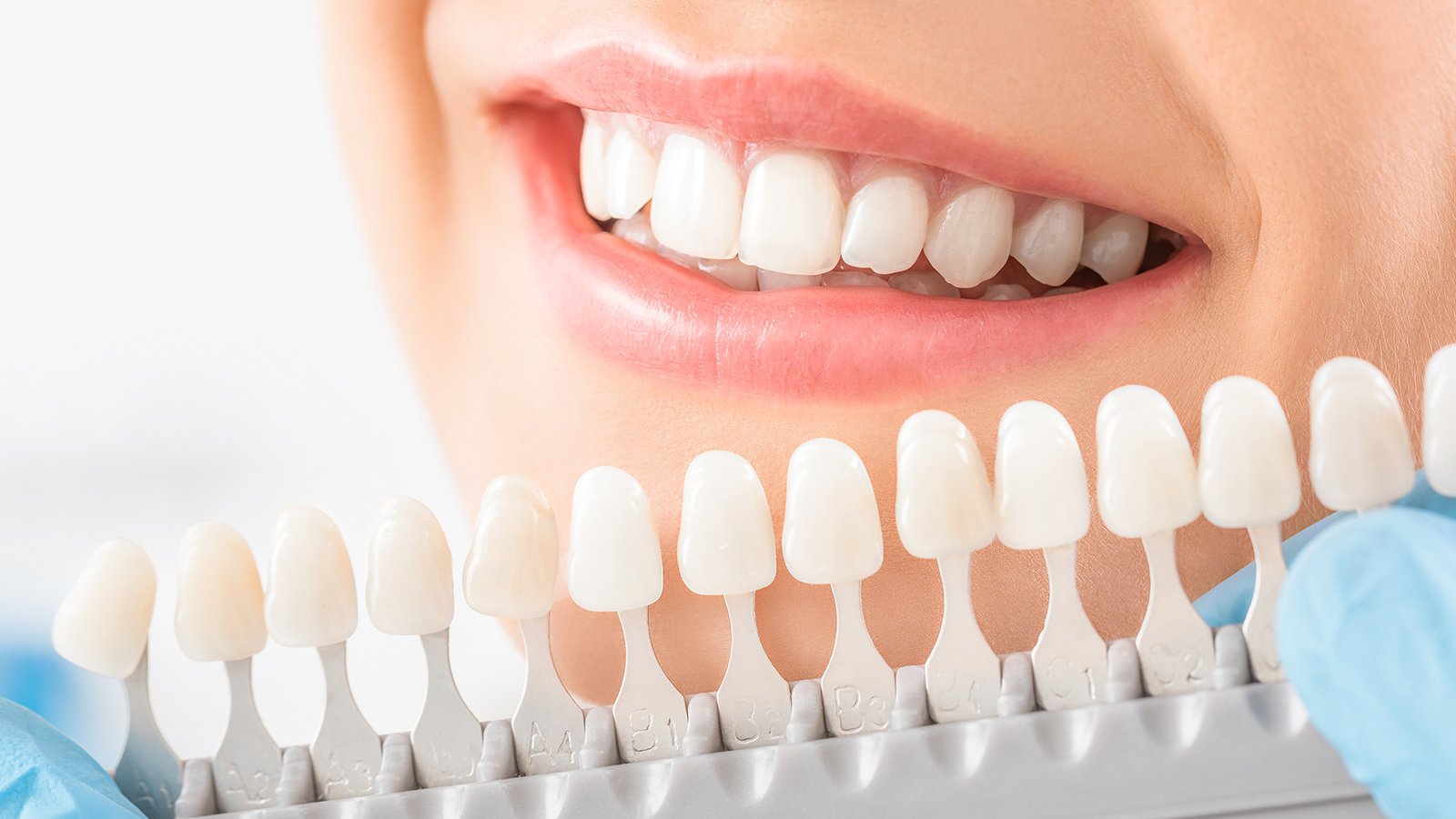 teeth whitening Barangaroo