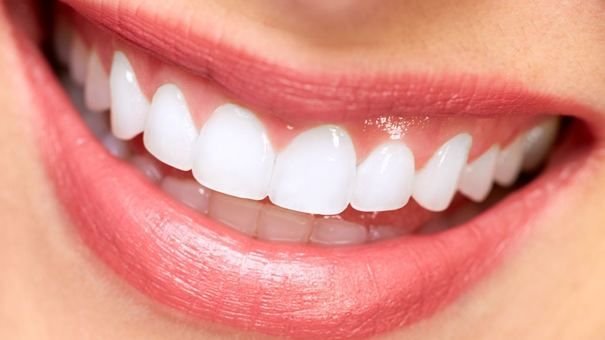 veneers sutherland shire , cosmetic dentist sutherland shire